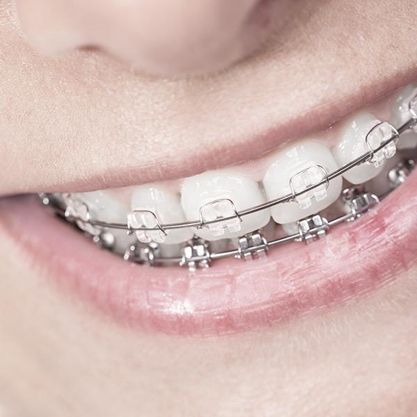 ortodontia-_1_medicaltrust